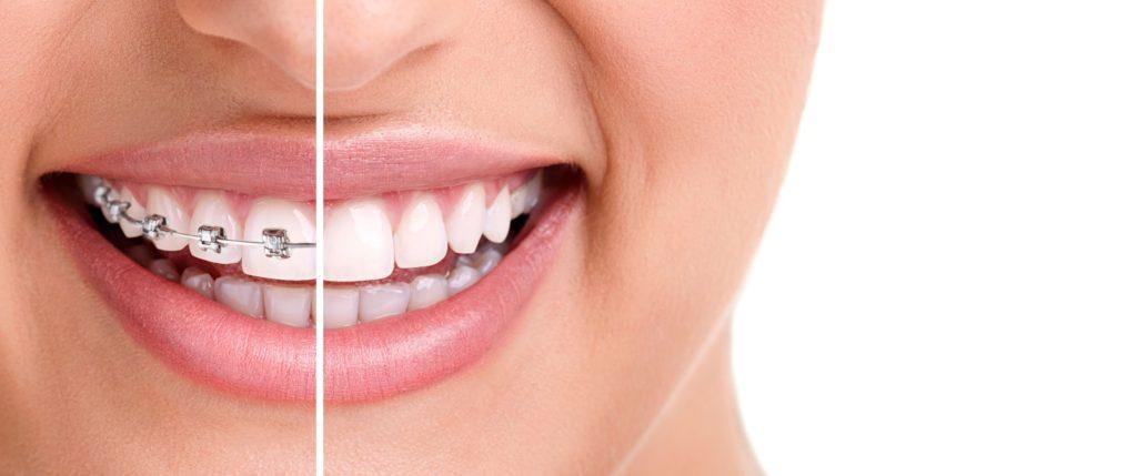 Ortodoncia. Qué es y a que edad comenzar los tratamientos